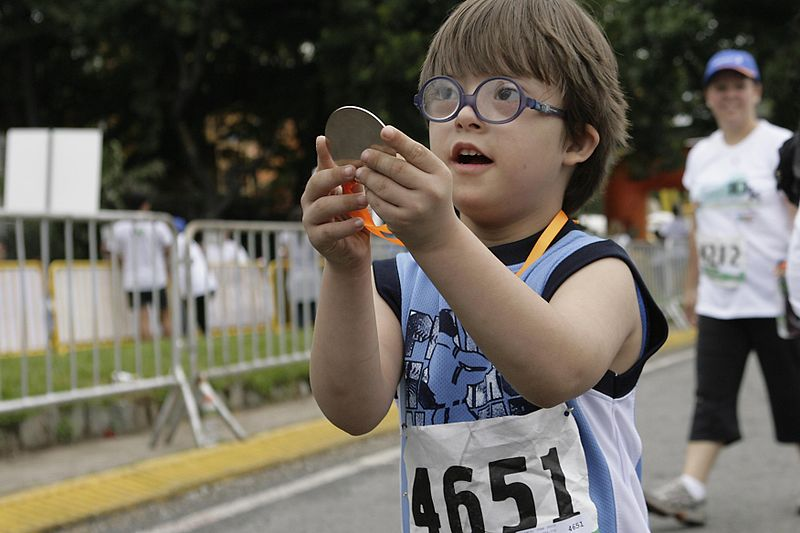 Un nen amb síndrome de Down   Foto: Wikimedia Commons